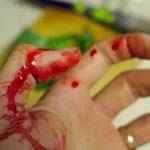 手に怪我を負う・傷を負う、手を切る夢を見た時の夢占い