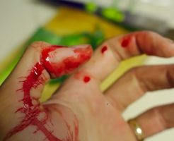 夢占い 手 怪我 切る 傷