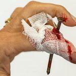 指を怪我して痛いと感じる夢占い
