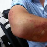 夢で腕にけがをしてしまった。腕に変な火傷やブツブツがある。夢占いではどんな意味