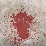 夢占いで大量の血の意味は?