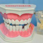 汚い歯が全部抜ける夢の夢占い